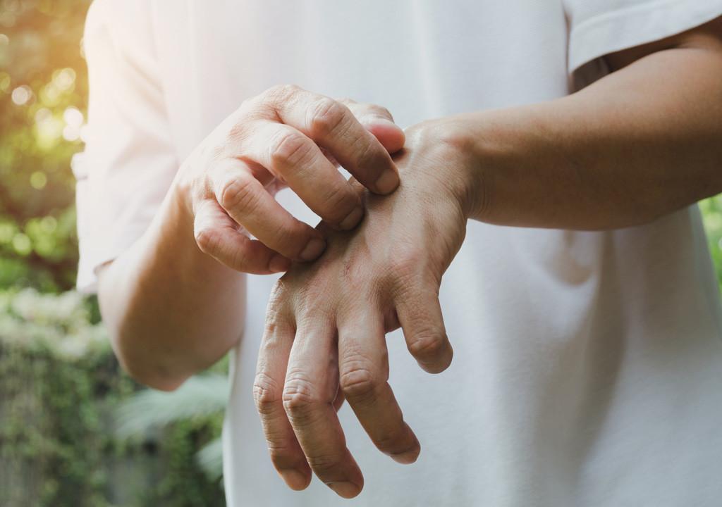 Gâle du maçon, comment la soigner